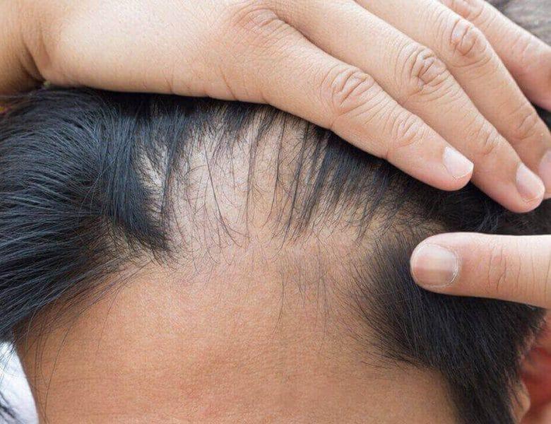 Saç Nakli Nedir? Nasıl Uygulanır?