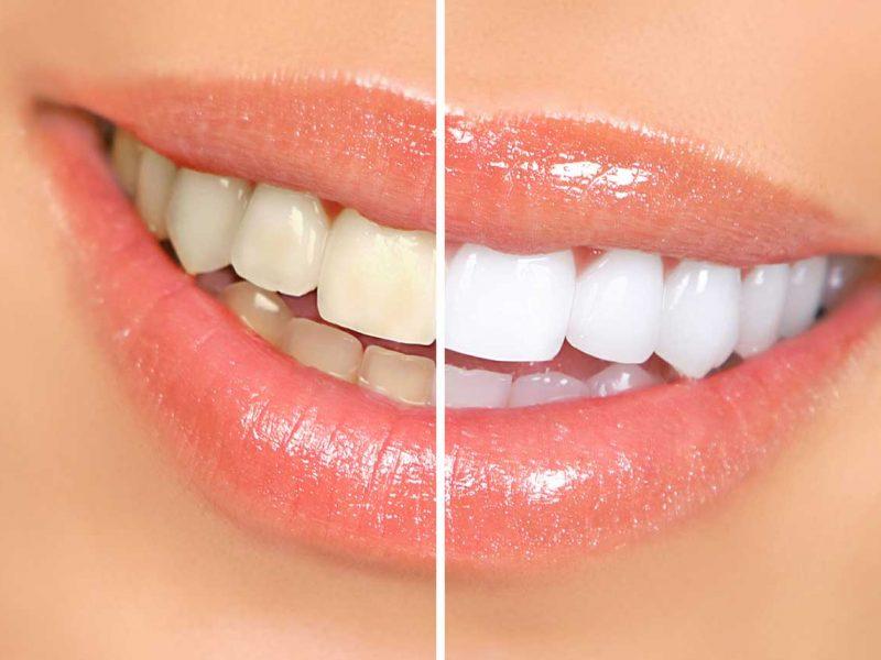 Eryaman Diş Hastanesi Kapsamlı Diş Hizmetleri