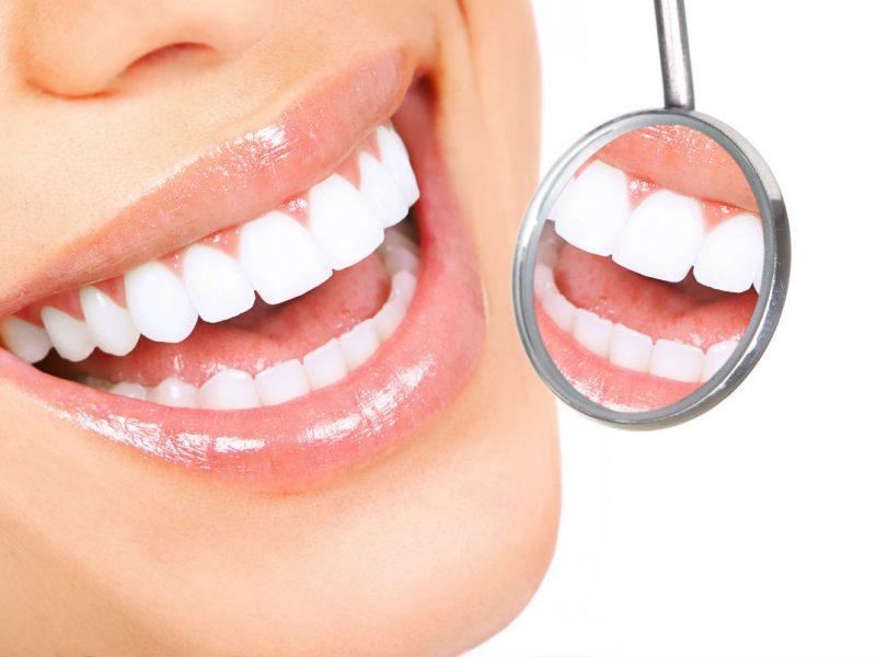 Diş Estetiği Tedavi Süreci Nasıldır?